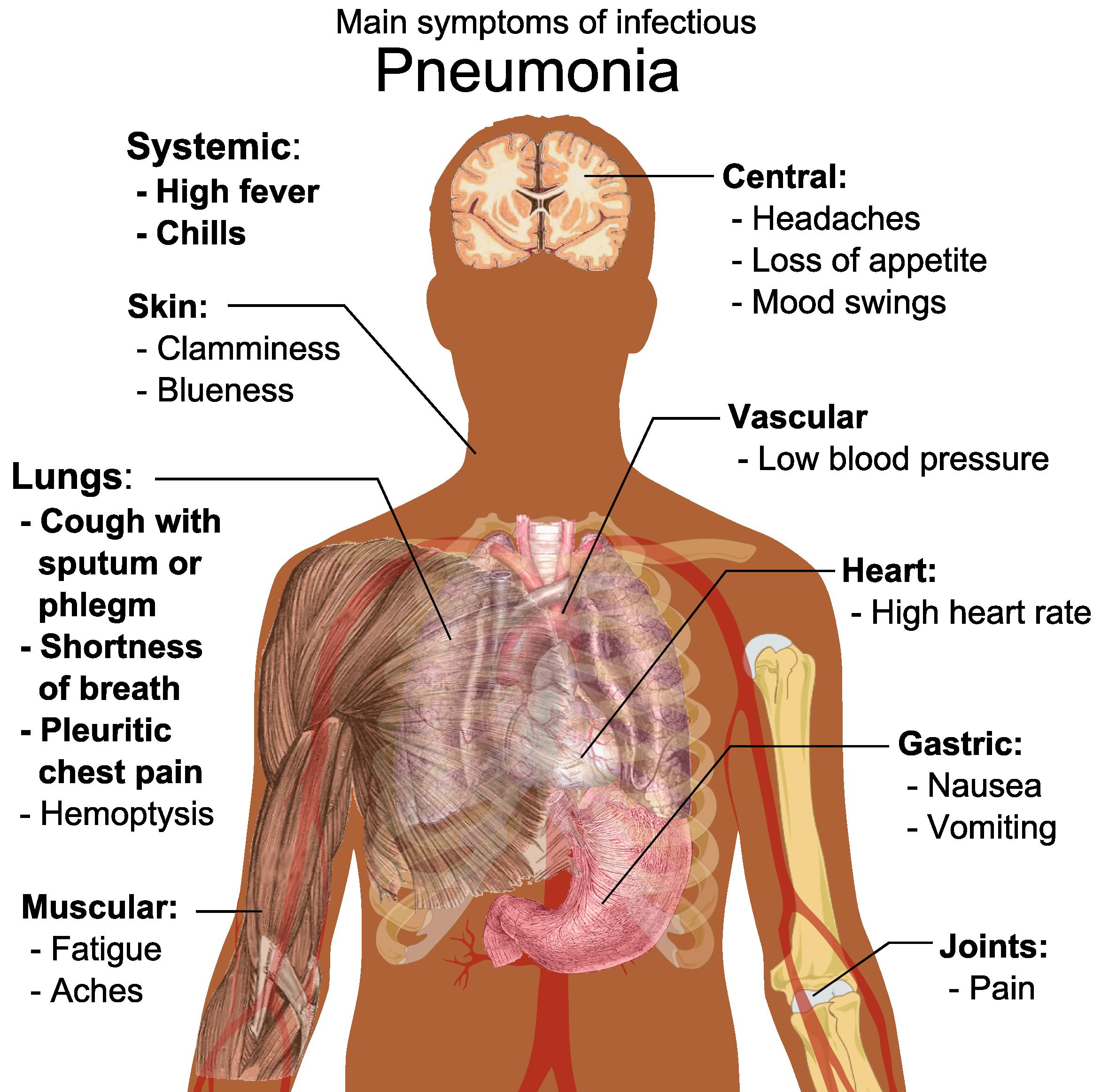 File:Main symptoms of infectious pneumonia.png - Pneumonia Patient PNG