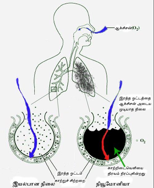 File:New Pneumonia cartoon-ta.png - Pneumonia Patient PNG