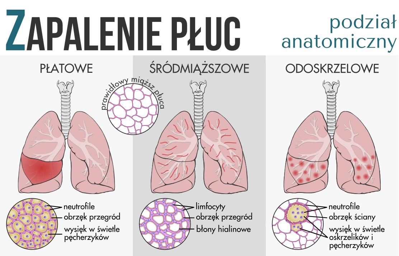 File:Pneumonia classification PL.png - Pneumonia Patient PNG
