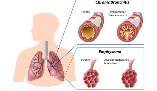 Pneumonia- copd