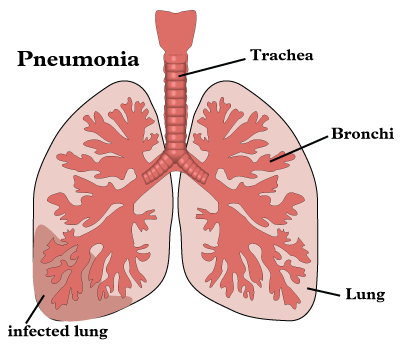 Pneumonia is an infection of