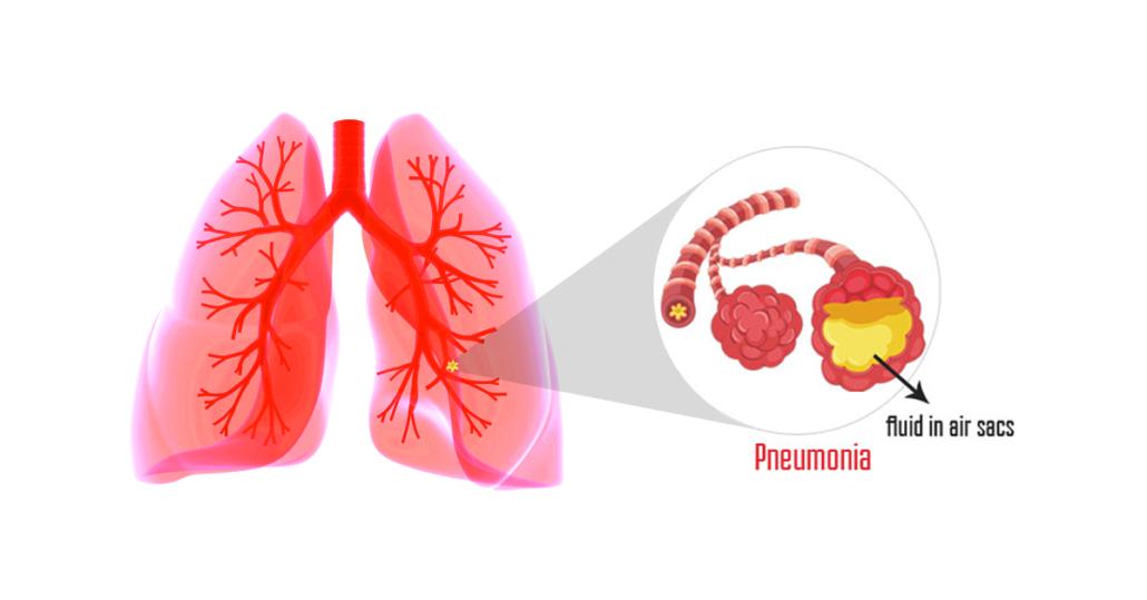 Pneumonia PNG - 76764