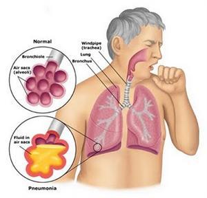 Pneumonia PNG - 76754