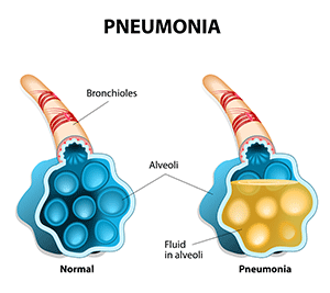 4 Signs Of Pneumonia You Should Never Ignore - Pneumonia PNG