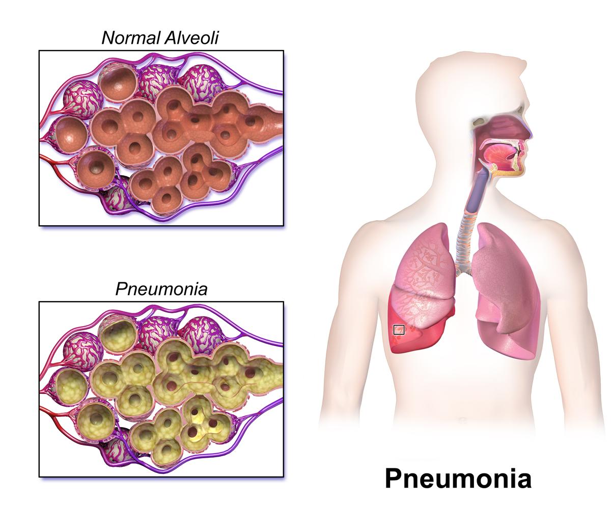 Pneumonia PNG - 76749