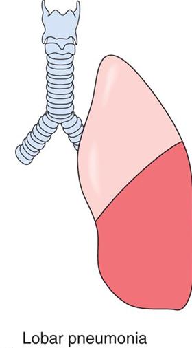Pneumonia PNG - 76762