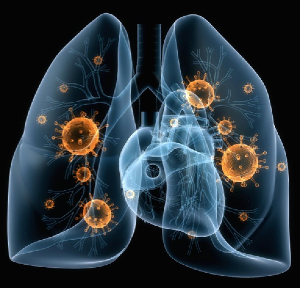 Pneumonia PNG - 76757