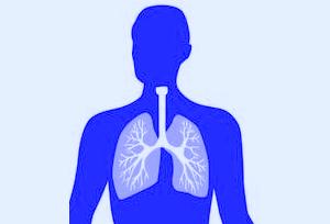 Pneumonia PNG - 76766