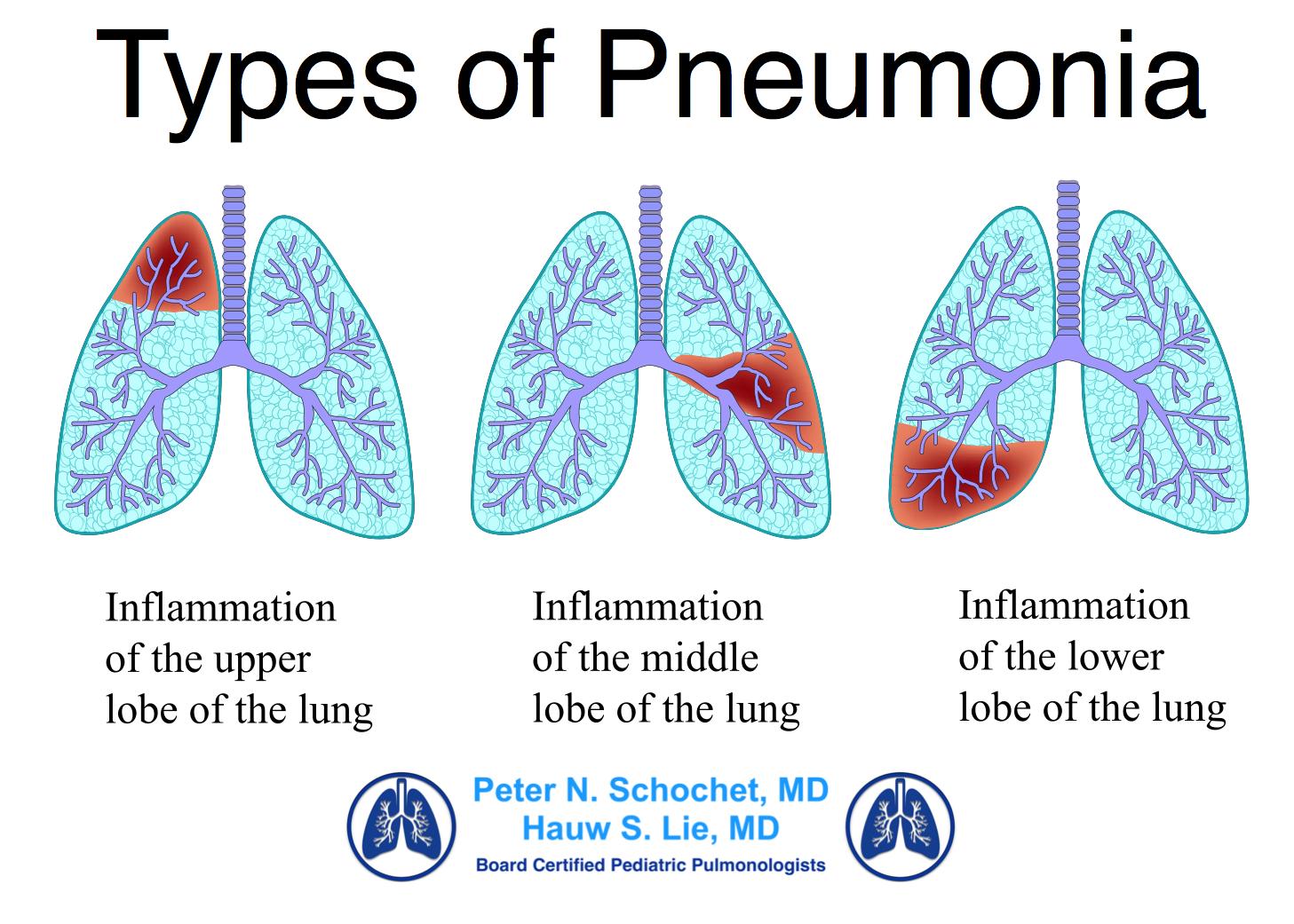 Pneumonia PNG - 76763