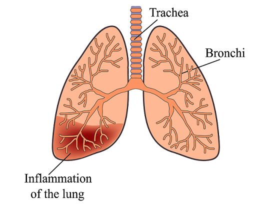 What Is a Pneumonia and How Does It Affect Seniors - Pneumonia PNG
