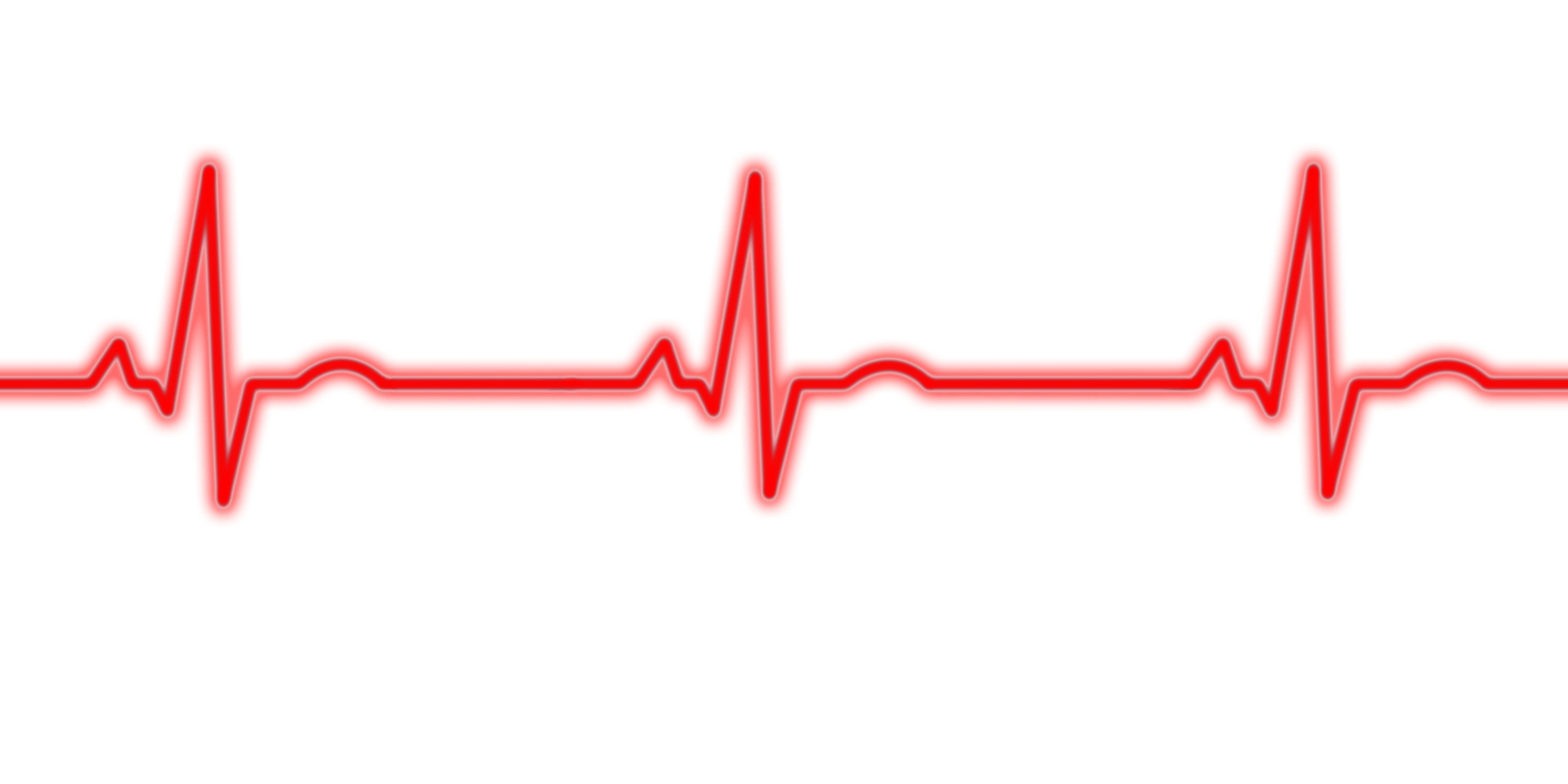 PNG Ekg Transparent Ek...