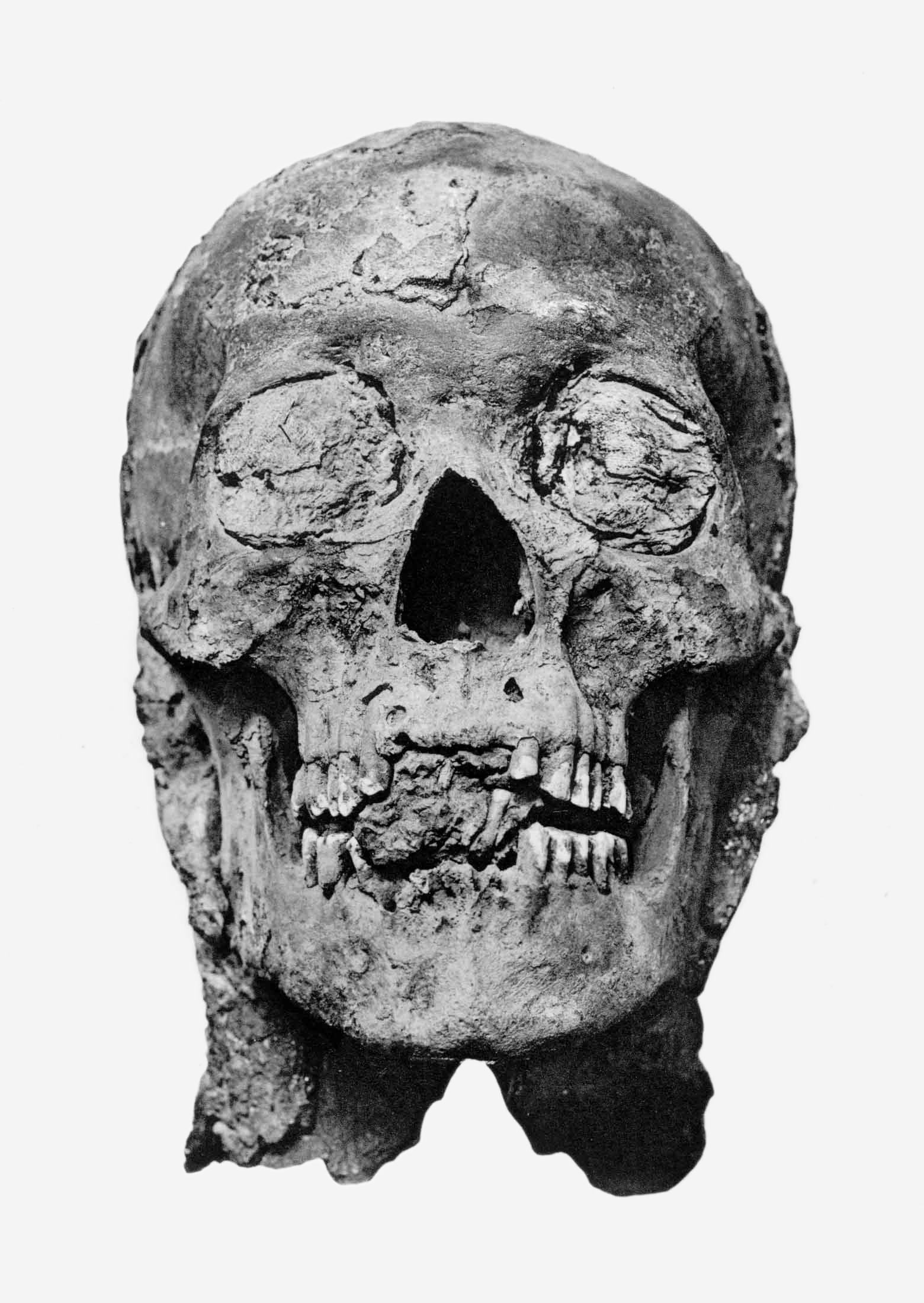 File:Amenhotep III mummy head.png - PNG Head