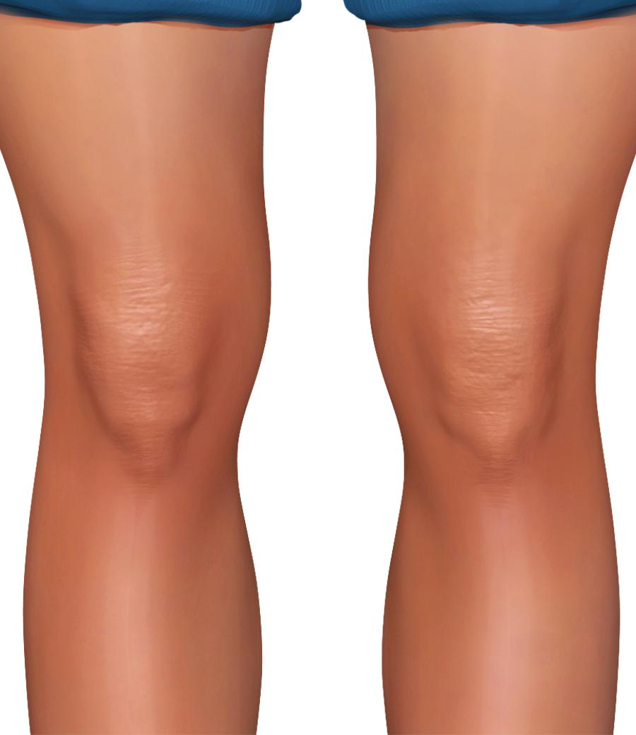 PNG Knee - 46848
