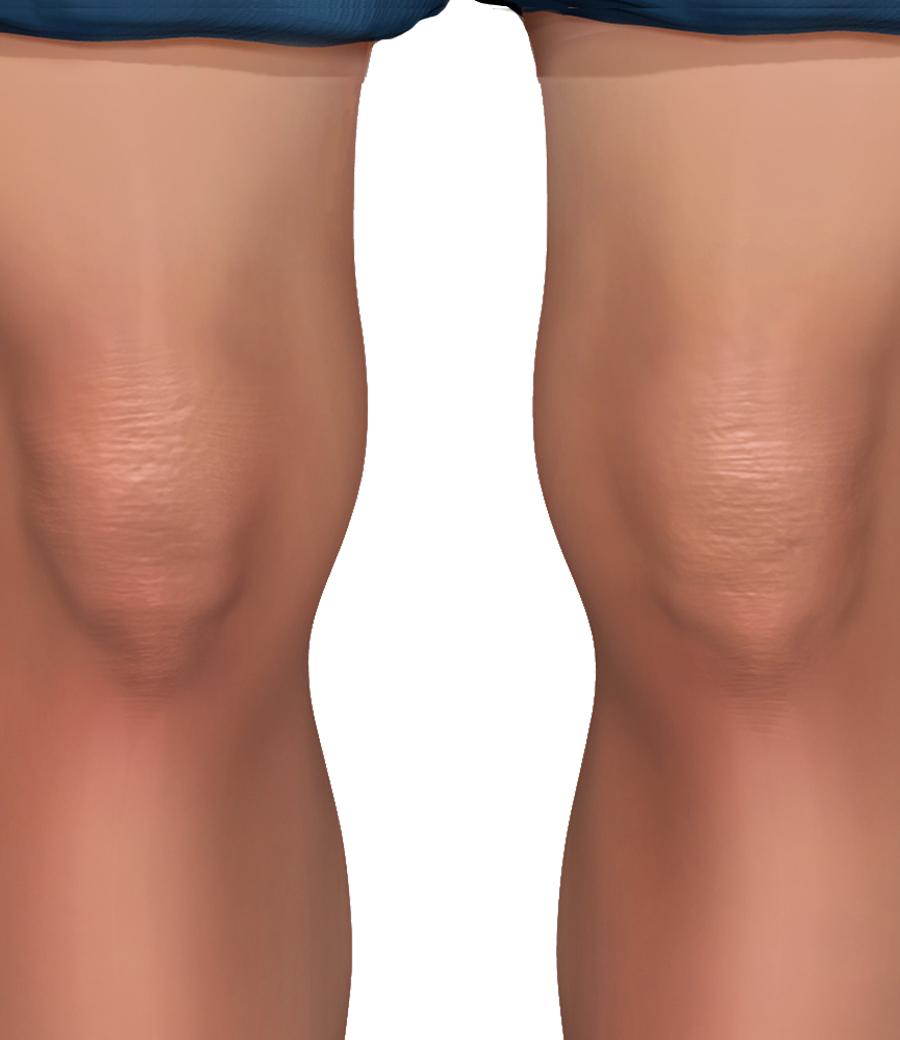 PNG Knee - 46854