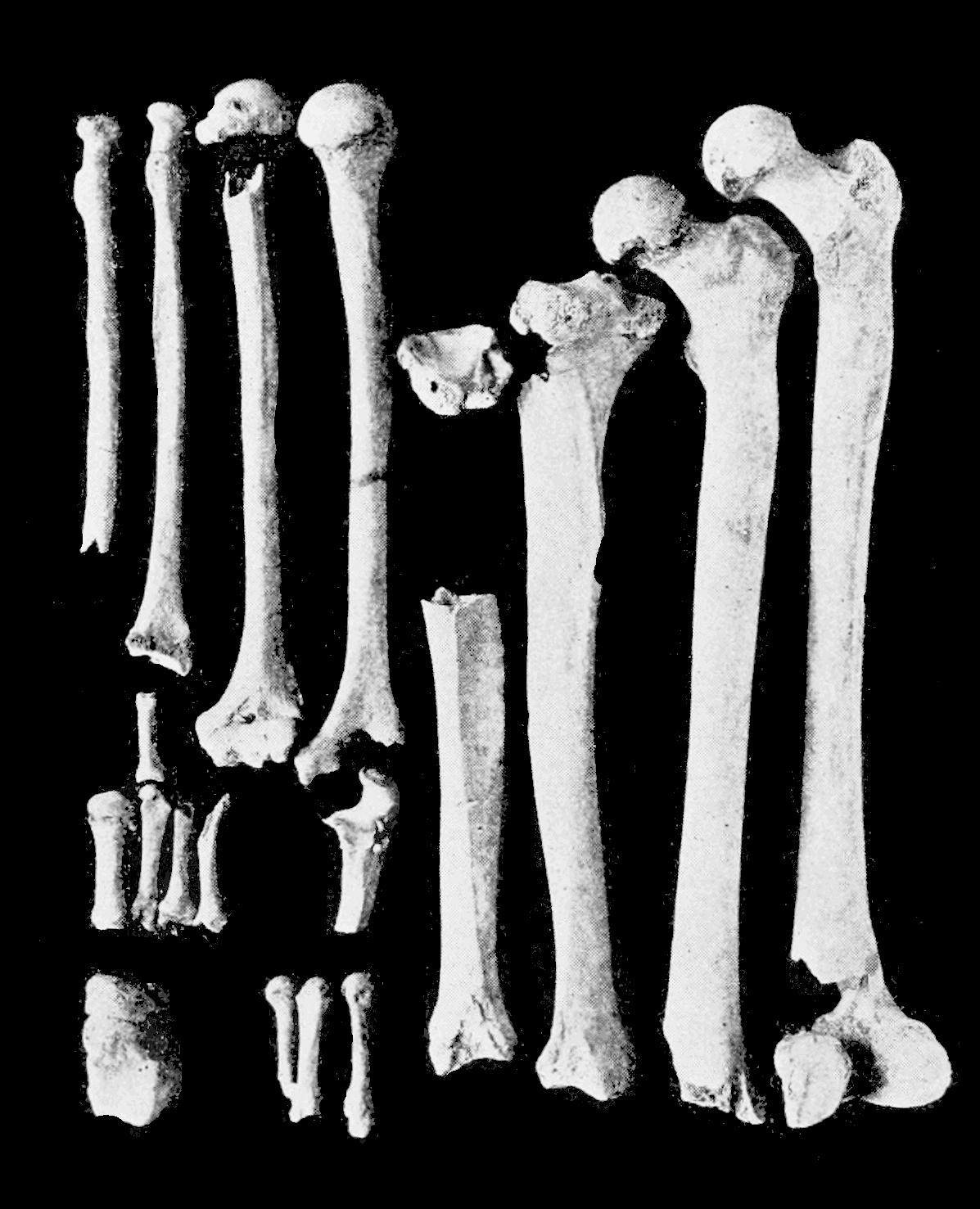 Png Skeleton Bones Transparent Skeleton Bonesg Images Pluspng