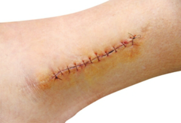 Scar Wound PNG-PlusPNG.com-357 - Scar Wound PNG