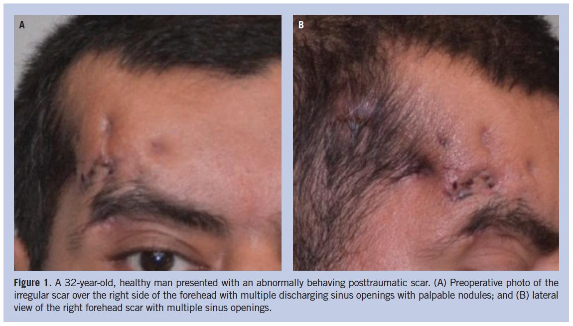 . PlusPng.com wounds_0117_panda_figure1 - Scar Wound PNG