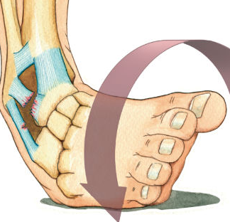 Sprained Ankle PNG