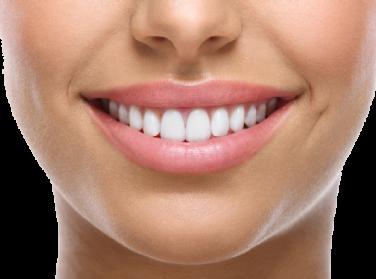 Teeth HD PNG - 90214