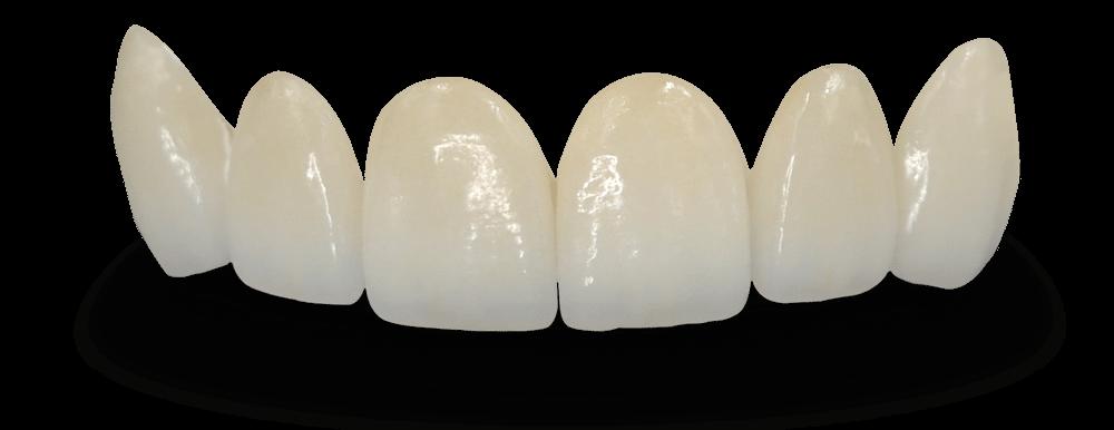 Dental Bridges - Teeth PNG HD