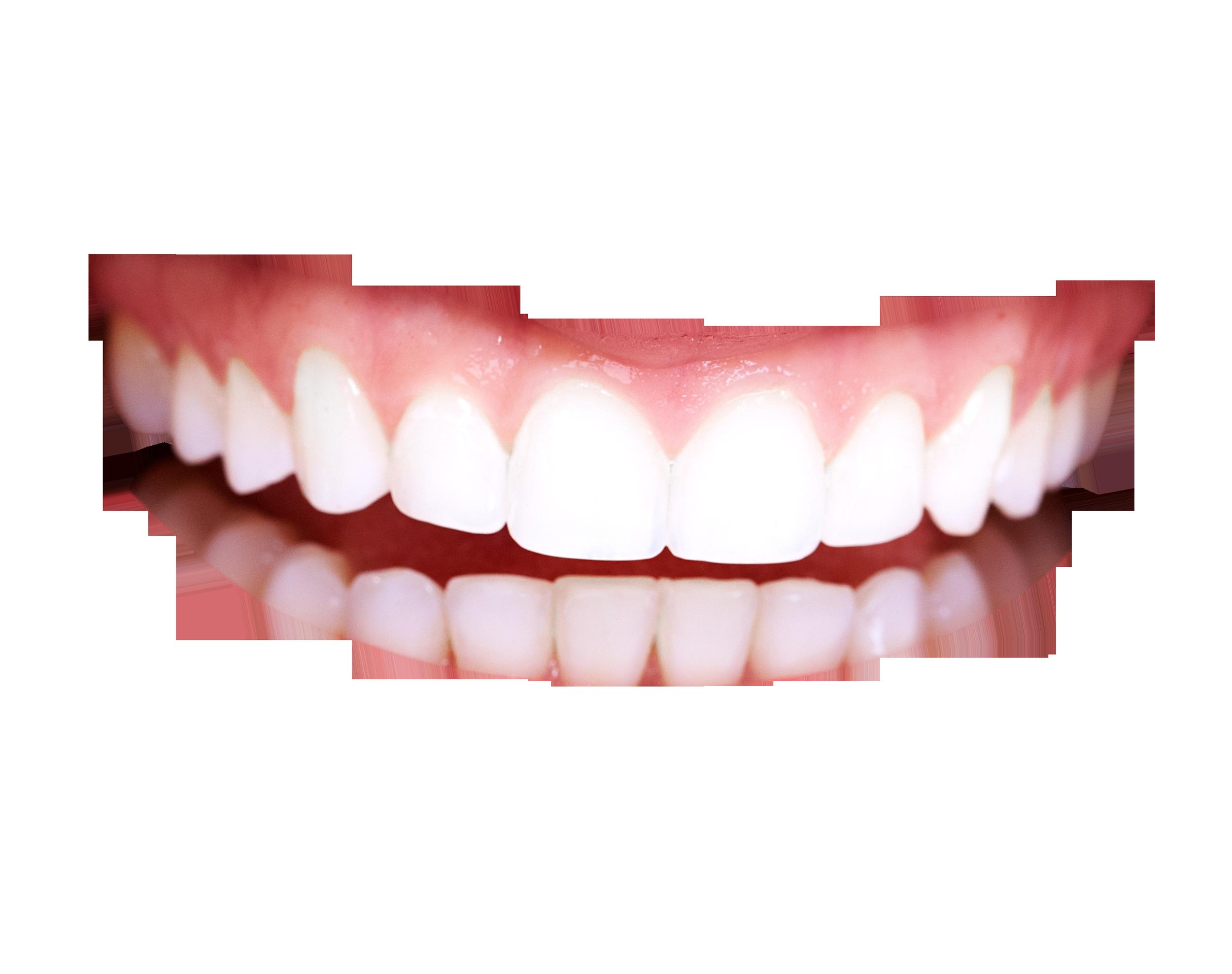 Teeth Smile PNG HD - 148056