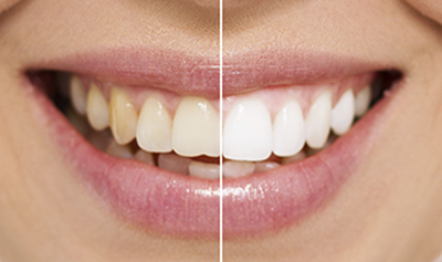 Teeth Smile PNG HD - 148065